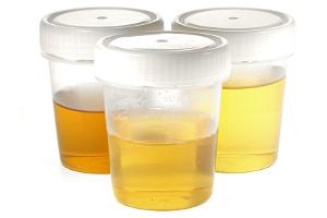 Für die MPU kann eine  Alkoholabstinenz durch Urinproben bewiesen werden.